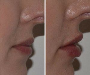lip fillers results before after photo