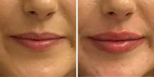 Before and After Lip Filler with The Private Clinic