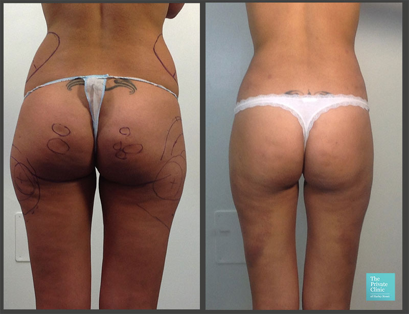 fat removal hips liposuction on buttocks before after photo