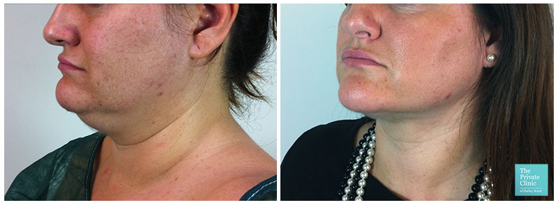 liposuction for women chin neck double chin before after photo results