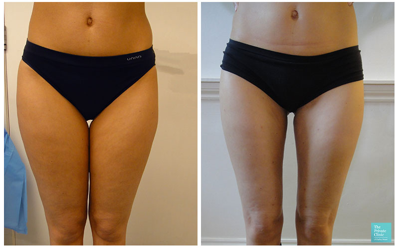 liposuction women micro-lipo thighs before after photo results