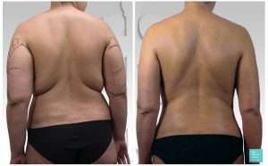 liposuction back bra fat arms before after photo