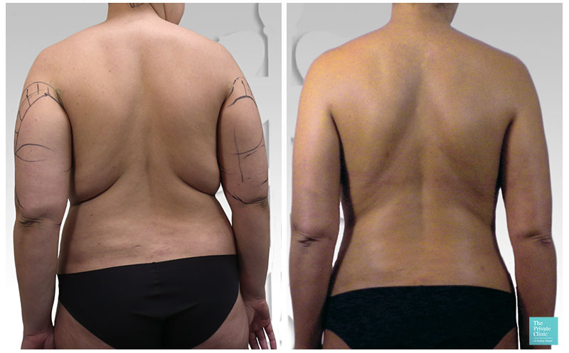 liposuction for women back flanks before after photo results