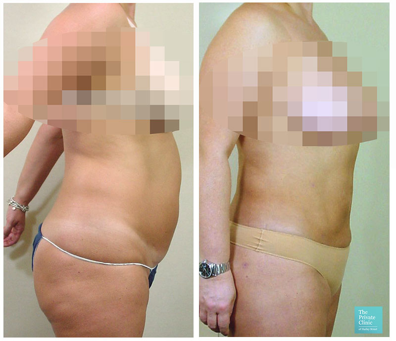 liposuction for women stomach abdomen before after photo results