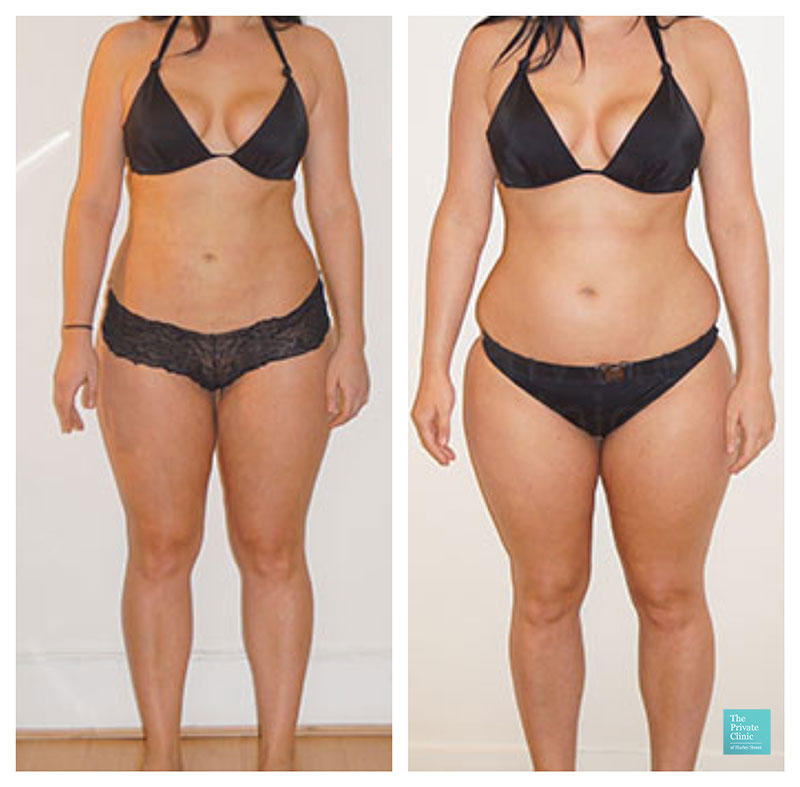 liposuction vaser lipo abdomen tummy thighs legs flanks hips before after photo