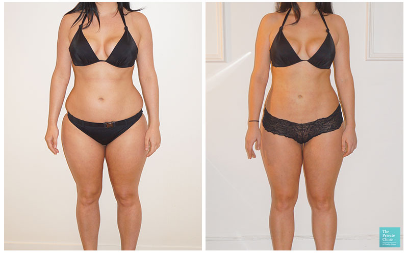 vaser liposuction women before after photo