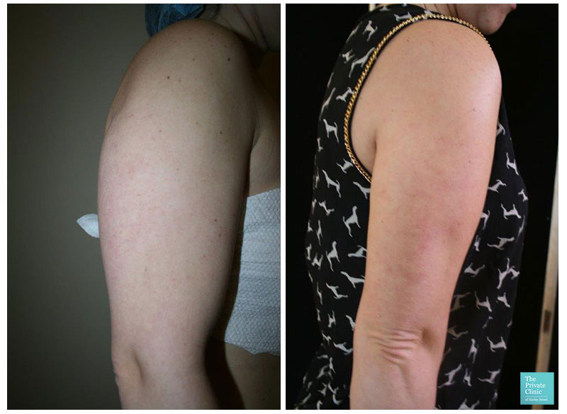 liposuction women vaser lipo arms bingo wings before after photo results
