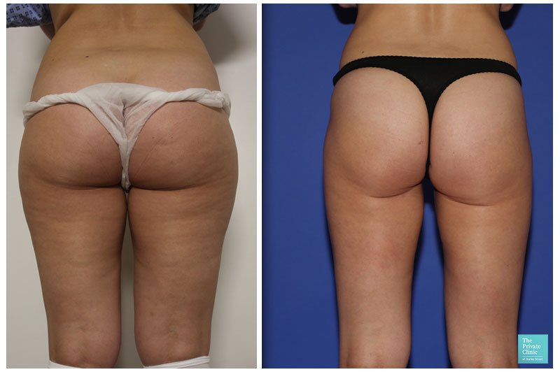 liposuction for women thighs bum legs before after photo results