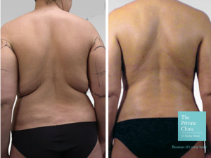 traditional liposuction surgery before and after photo
