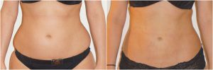 love handles muffin top flanks before after photo vaser liposuction