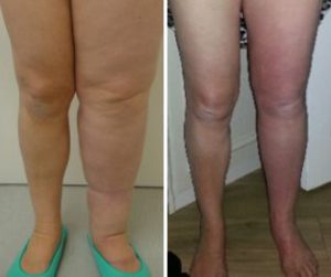 lymphoedema micro lipo before and after photo