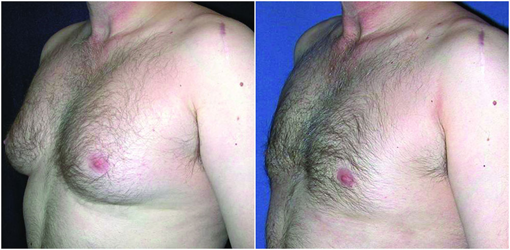 male-chest-reduction-before-after-the-private-clinic-web