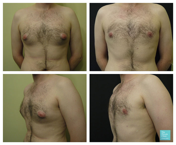 gynecomastia enlarged male breast surgical removal before after photo