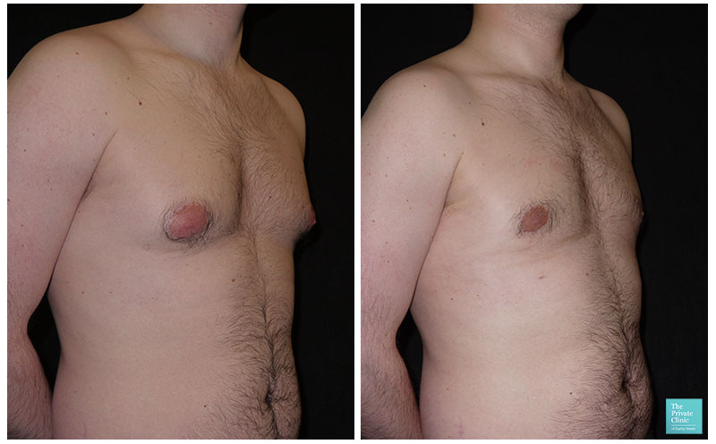 male chest reduction before and after results uk