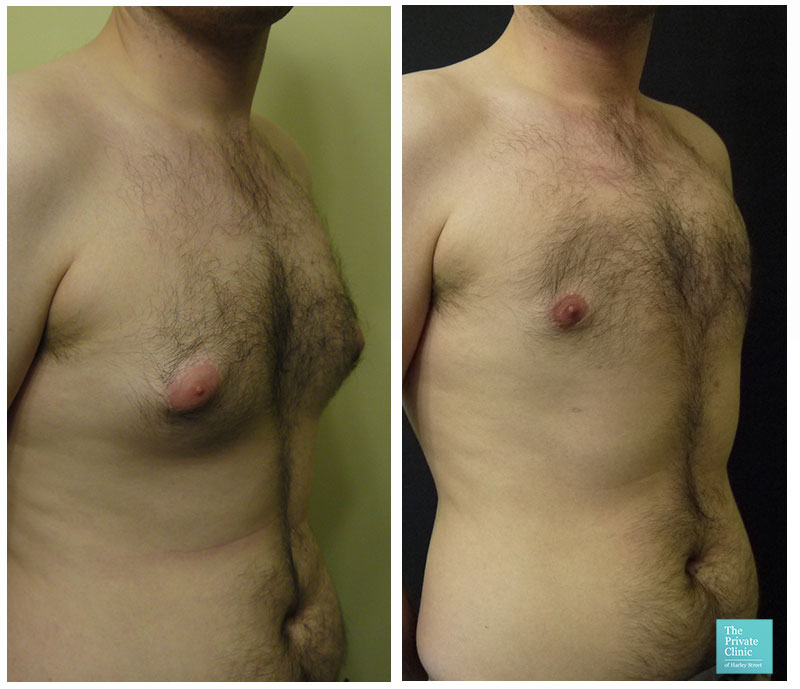 male chest reduction gynecomastia surgery uk before after photo