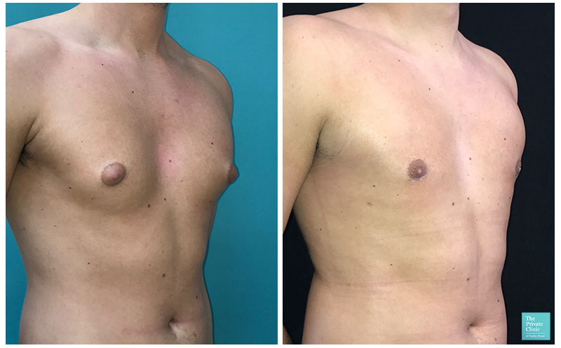 male chest reduction before after photo