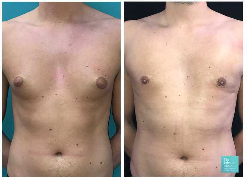 male chest reduction surgery before after photo