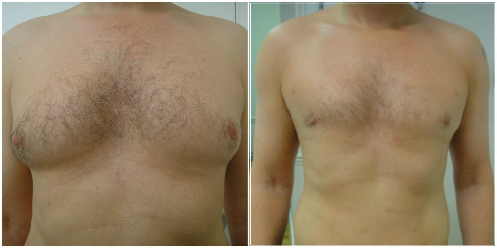 Before and after MicroLipo Male Chest Reduction at The Private Clinic with Dr Gupta.