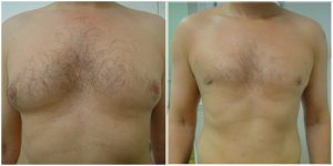 male breast reduction before after photo