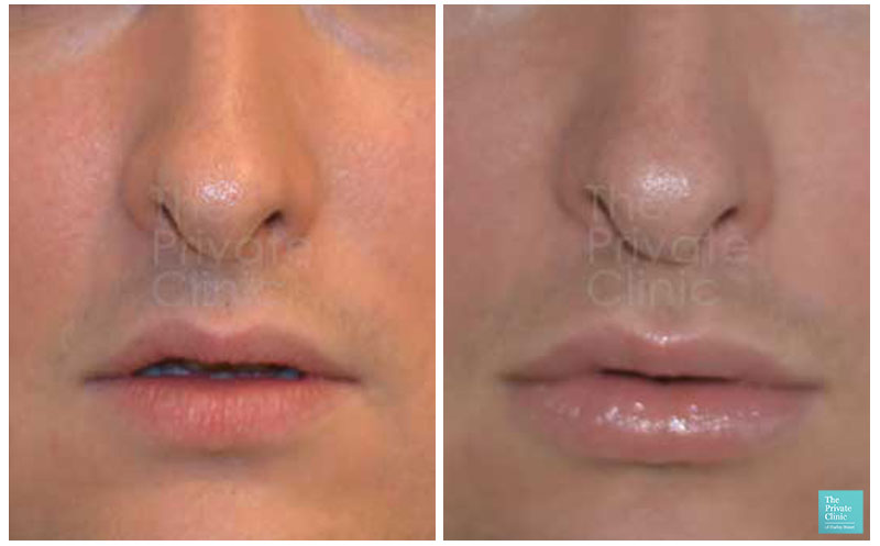 male lip fillers before after photo results
