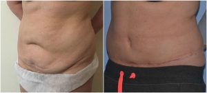 abdominoplasty tummy tuck before after photos