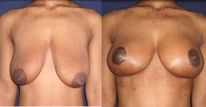 mastopexy-before-and-after