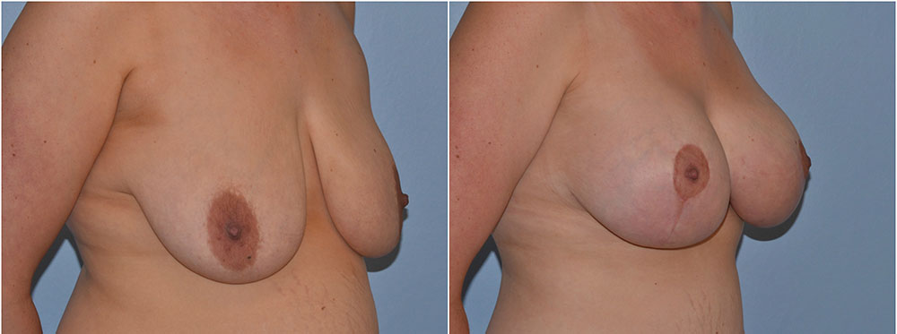 breast uplift before after photos