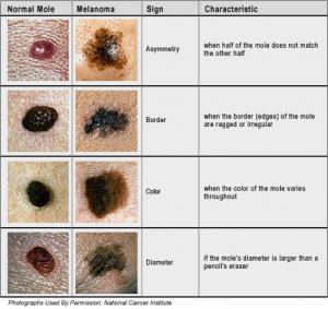 The ABCDs of checking your skin. And don't forget E - evolution. Check for any changes!