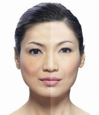 Melasma Treatments at The Private Clinic