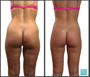 micro lipo buttock reshaping liposuction before after photos