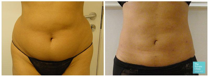 Vaser Liposuction flanks before after photo