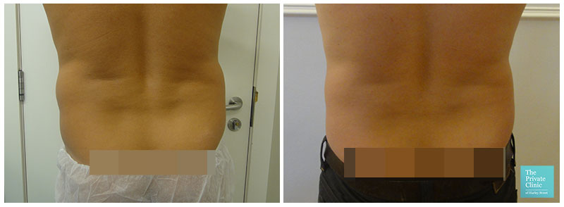 Micro Lipo flanks before after photo