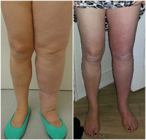 microlipo-lymphoedema-before-after-the-private-clinic-web