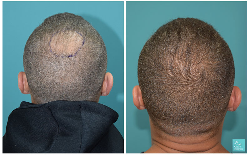 6 months post hair transplant procedure before after photo