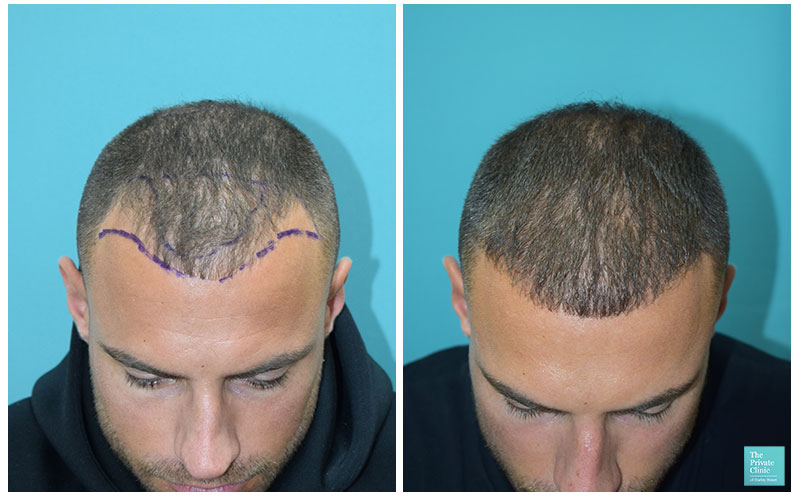 mike thurston hair transplant 6 months results before after hairline the private clinic