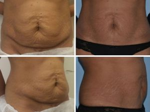 mini abdominoplasty before and after