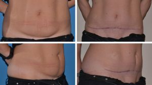 mini tummy tuck before and after photo