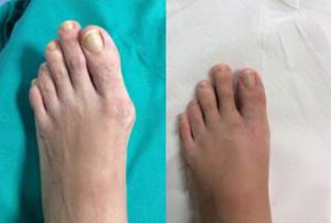 bunion surgery post op photo london