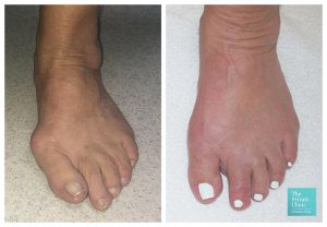 Minimally Invasive Bunion Removal Before and after photos