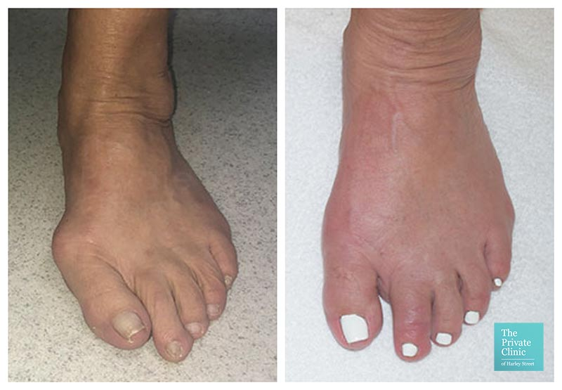 minimally invasive bunion removal surgery london harley street before after photo