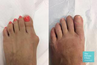 bunion removal surgery before after photos london harley street