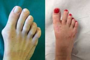 minimally invasive bunion removal treatment before after photos