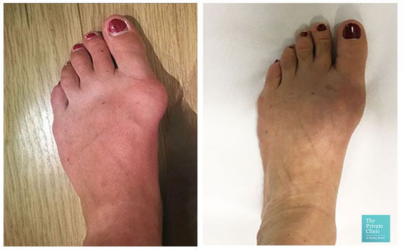 bunion correction surgery before after photo london uk harley street