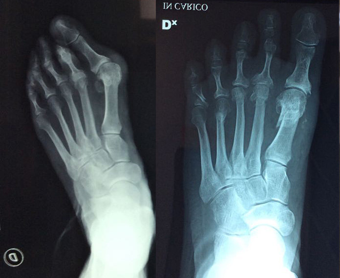 no screws bunion surgery before and after photo of foot