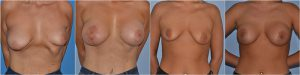 Asymmetry breast correction before after photos uk