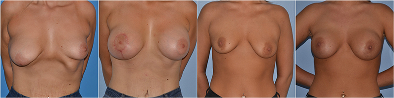 breast asymmetry correction before after photo