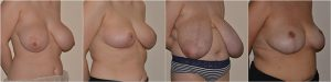 Breast Reduction before after photos UK