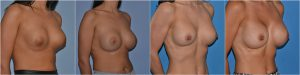 Breast Implant Replacement before after photos uk