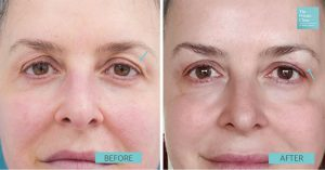 Before and after picture after 1 session of Nano Plasma Non-Surgical Eyelift.