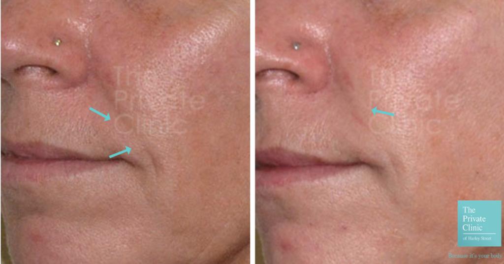 Before and after Nasolabial folds dermal filler